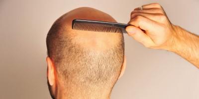 Glatzen rasieren und mit Sebstbewusstsein tragen
